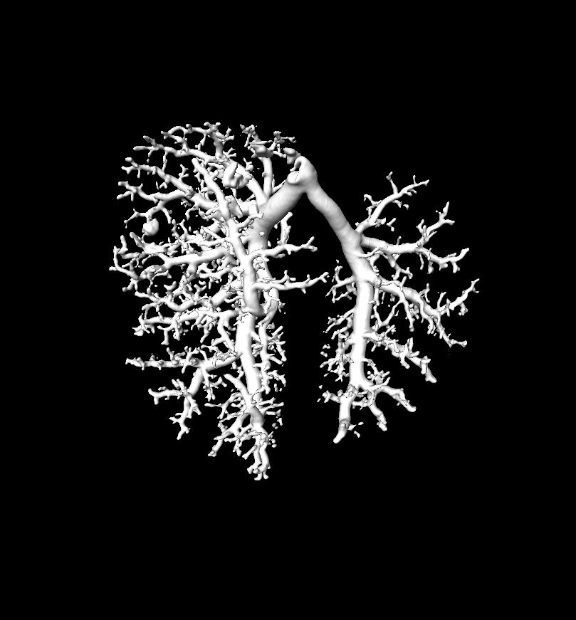 325_micro CT C57 mouse Hx MeCell RL lung 1000_Hansmann